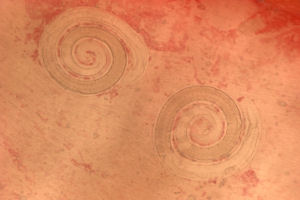 Trichinella spiralis nurse cells in muscle