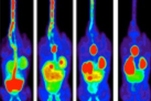 New method could lead to clearer and better quality images on PET scans