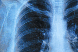 Image of a lung
