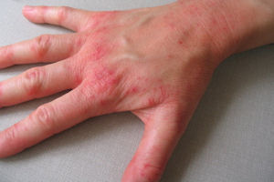 The hand of someone with dermatitis