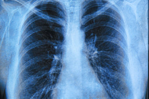 The test could match lung cancer patients to the right treatment