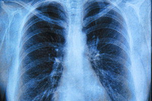 Lung cancer is the most common cause of cancer deaths