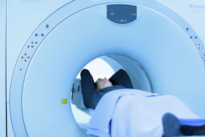 PET imaging is widely used in the management of cancer patients